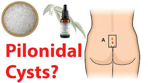 pilonidal cyst location how to get rid of pilonidal cysts home remedies for pilonidal