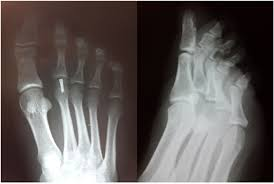 Avascular Necrosis Of The Metatarsal Head An Unusual Osteochondral Articular Surface Fracture Of Second