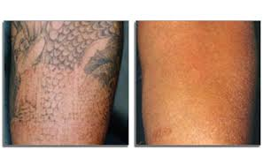 laser tattoo removal as recommended by tattoo lou u0027s ny