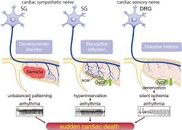 Nervous System Concept Map Cardiac Innervation And Sudden Cardiac Death Circulation Research