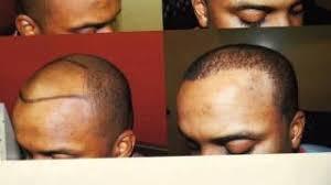hairline restoration for black men medical hair transplants aesthetics viyoutube com