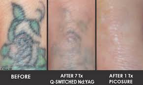 100 tattoo lazer removal tattoo laser removal in milton