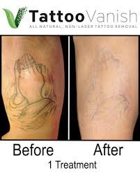 tattoo removal pictures tattoo removal before and after pictures