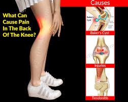 Leg Pain Going Down Stairs can cause pain in the back of the knee