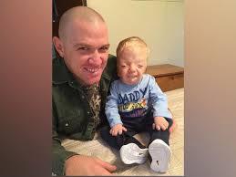 Cruel Meme - mom fights back against cruel meme of terminally ill toddler abc