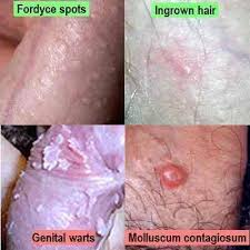 why do ingrown hairs hurt hard bruised and painful bump above penis things you didn t know