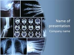 Radiology Powerpoint Template radiology powerpoint template best sles templates