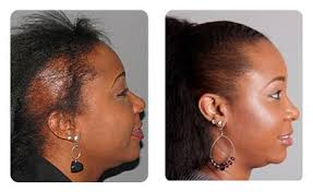 hair transplant for black women hair loss in women hair restoration results bosley female