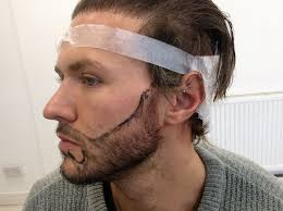 paddy mcguinness hair transplant geordie shore s kyle christie gets a 12 hour beard transplant to