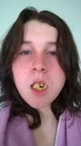 Gross Face Meme - gross teeth blank template imgflip
