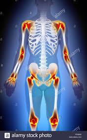 Human Anatomy Male Arthritis Joints Pain Anatomy Male Concept Stock Photo Royalty