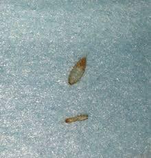 Tiny Brown Bug In Bathroom Little Black Bugs In Kitchen Cabinets Memsaheb Net