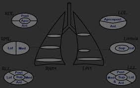 Radiology Anatomy Ct Pulmonary Angiography