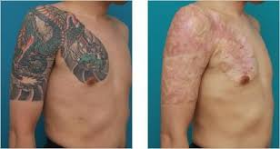 risks of non laser tattoo removal methods