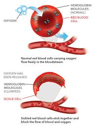 blood gbt440 for sickle cell disease global blood therapeutics