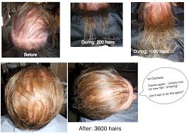 male hair extensions before and after hair extensions for thin hair before and after