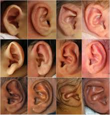 nonsurgically correct infant ear deformities
