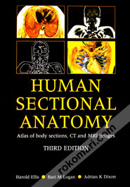 Mri Sectional Anatomy Buy Human Sectional Anatomy Atlas Of Body Sections Ct And Mri