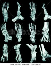 Skeletal Picture Of Foot Body Joints Stock Images Royalty Free Images U0026 Vectors Shutterstock