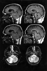 Brainstem Mass Cerebellar Swelling And Massive Brain Stem Distortion Spontaneous