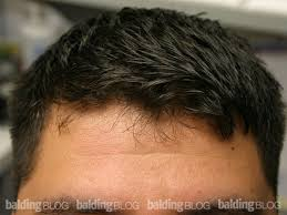 teenage hairlines juvenile vs mature hairline am i going bald with photos