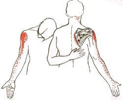 Innervation Of Infraspinatus 25 Best Supraspinatus Muscle Ideas On Pinterest Infraspinatus