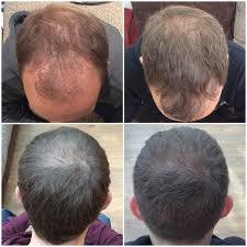 Laser Hair Growth Hat Capital Hair Restoration London Private Hair Loss Clinic In