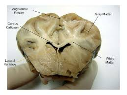 Sheep Heart Anatomy Quiz Sheep Brain Gross Anatomy Sheep Brain Anatomy Quiz With Courses Of