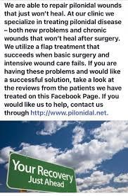 62 Best Pilonidal Surgery Images On Pinterest Pilonidal Cyst
