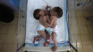 Seeking Conjoined Conjoined Who A Born In Hebron The