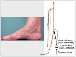 Foot Vascular Anatomy The Venous System Of The Foot Anatomy Physiology And Clinical
