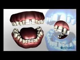goody bands for teeth orthofill teeth gap bands