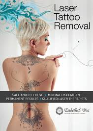 laser tattoo removal embellish you
