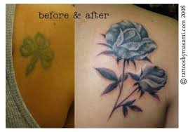 cover up tattoo as an alternative to laser tattoo removal after
