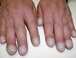 ridges in fingernails vertical horizontal causes symptoms