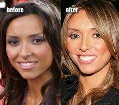 guliana rancic gums thinning hair nicki minaj plastic surgery before and after http