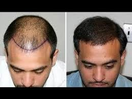 hair transplant america hair transplant is surgery to restore hair back dr j p walia is
