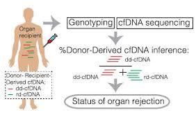 method for organ transplant monitoring promises better care for