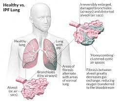 what is idiopathic pulmonary fibrosis ipf lungs and you