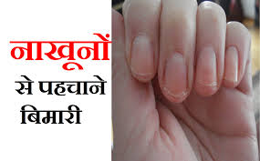 न ख न स पहच न ब म र your nails can say
