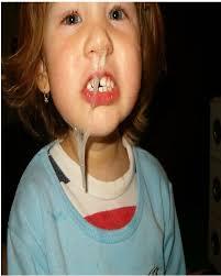 Little Girl Meme Teeth - craziest baby pics