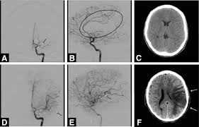 current status of endovascular stroke treatment circulation