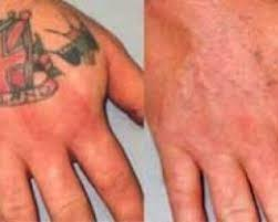 tattoo removal in new orleans the tattoo removal directory