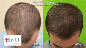 can you color hair after brain surgery video failed strip surgery hairline transplant repaired by dr u