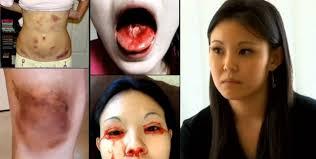 imágenes religiosas que lloran sangre un nuevo caso enigmático de una joven que llora sangre