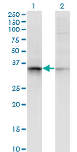 100 µl calnexin antibody monoclonal af18 1 mg ml from thermo