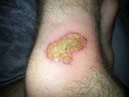 is my road rash infected more info in comments health