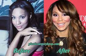 tamar braxton nose job before after tamar braxton plastic surgery before and after