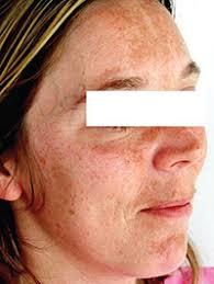 chemical peels u2013 lasermed u2013 laser hair removal laser tattoo