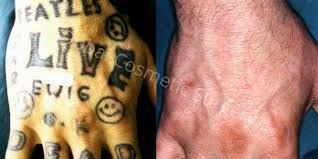 laser tattoo removal in dubai u0026 abu dhabi before u0026 after dubai